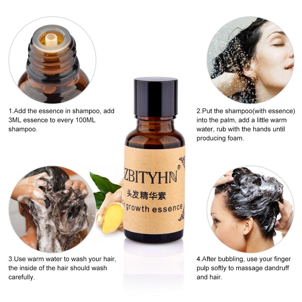 Hair Growth Essence Hair Loss Liquid Dense Hair Fast Growth Grow Restoration Anti Hair Loss Serum 20ml Beauty Care Products (3)