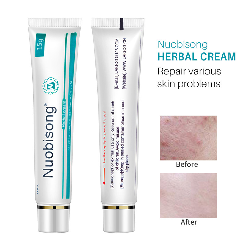 1PC Nuobisong Face Skin Care Treatment Face Pimples Scar Stretch Marks Removal Acne Treatment Whitening Moisturizing Cream TSLM1
