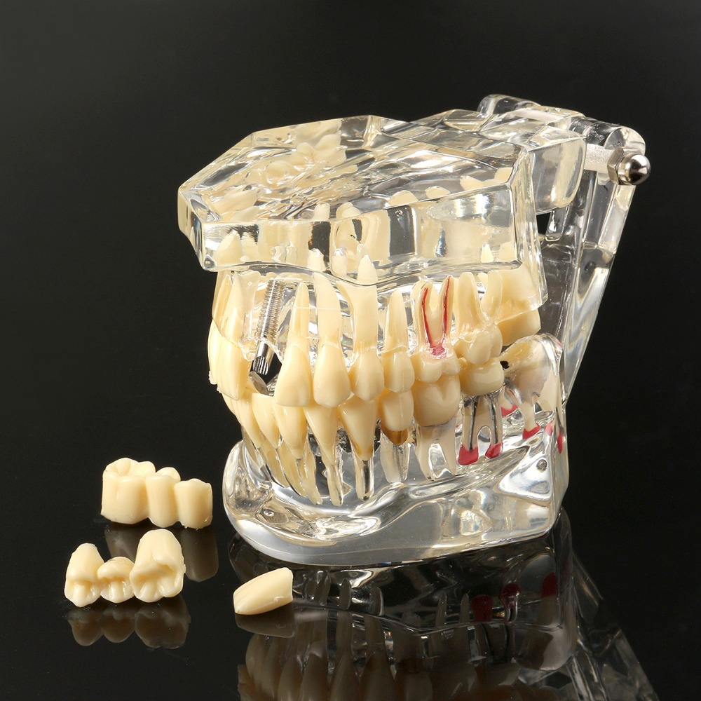 Dental Implant Disease Teeth Model With Restoration Bridge Tooth Dentist For Medical Science Dental Disease Teaching Study потолочная люстра odeon light crea color 2598 6c