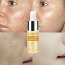 Vitamin C Serum VC Essence Remove Dark Spot Freckle Speckle Fade Ageless Whitening Skin Care Face Anti Winkles !