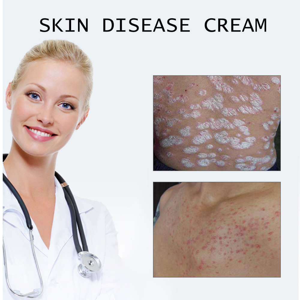 KONGDY Health Care Psoriasis Cream Chinese Ointment Psoriasi Eczma Cream 100% Original Cure Psoriasis Ointment