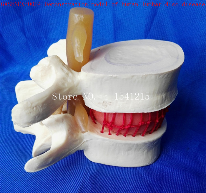 Spine orthopedics Human Anatomy Medicine Demonstration model of human lumbar disc disease-GASENCX-0024 spine orthopedics human anatomy medicine demonstration model of human lumbar disc disease gasencx 0024