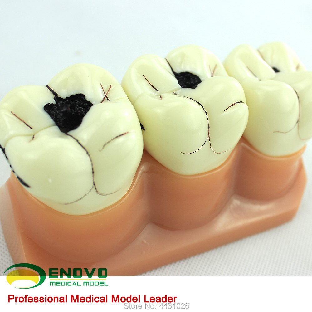 ENOVO Oral cavity dental caries breakdown model oral pathology dental caries model doctor-patient communication demonstration transparent dental orthodontic mallocclusion model with brackets archwire buccal tube tooth extraction for patient communication