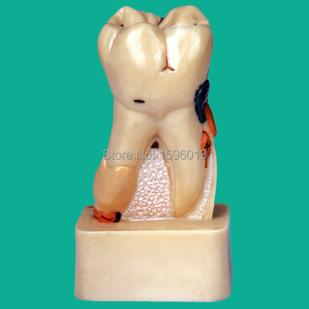 Dissected Model of Dental Disease, dental disease pathology decomposition model dissected model of teeth tissue dental care model