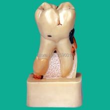 Dissecado Modelo de Doença Dental, doença dental patologia modelo de decomposição