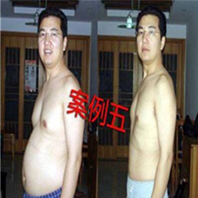 40 peças de medicina Chinesa para simuladores de emagrecimento perda de peso para o emagrecimento remendo magro perder peso rápida perda de peso dietas