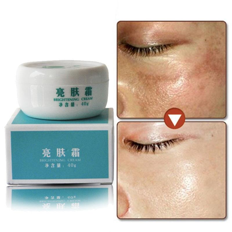 4pcs Dark Spot Corrector Skin Whitening Fade Cream
