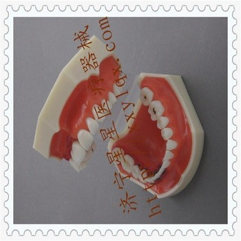 Patient communication Dental teaching model 12.6cm*7.8cm*6.2cm Periodontal Disease model Oral model free shipping