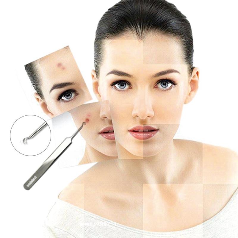 Brainbow 3 teil/paket Mitesser Pinzette Mitesser & Makel Entferner Punkt Biegen Gib Kopf Komedonen Akne Extractor Gesicht Hautpflege Werkzeuge