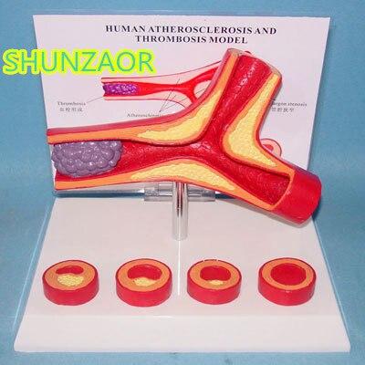 Атеросклероз сосудистая модель тромбоз модель человека сосудистая модель