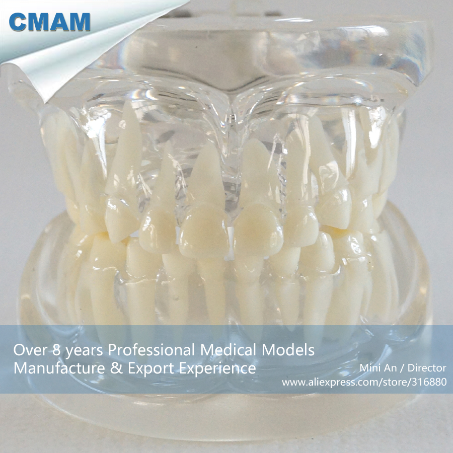 ФОТО CMAM-DH309 Transparent Primary Teeth Model for Deciduous Dentition Study