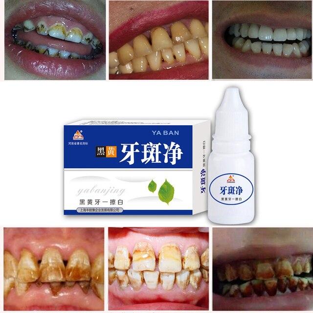 10ml Teeth Whitening Water Oral Hygiene Cleaning Teeth Care Tooth