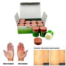 29a 건선 eczma 크림은 모든 종류의 피부 문제 패치에 적합합니다.