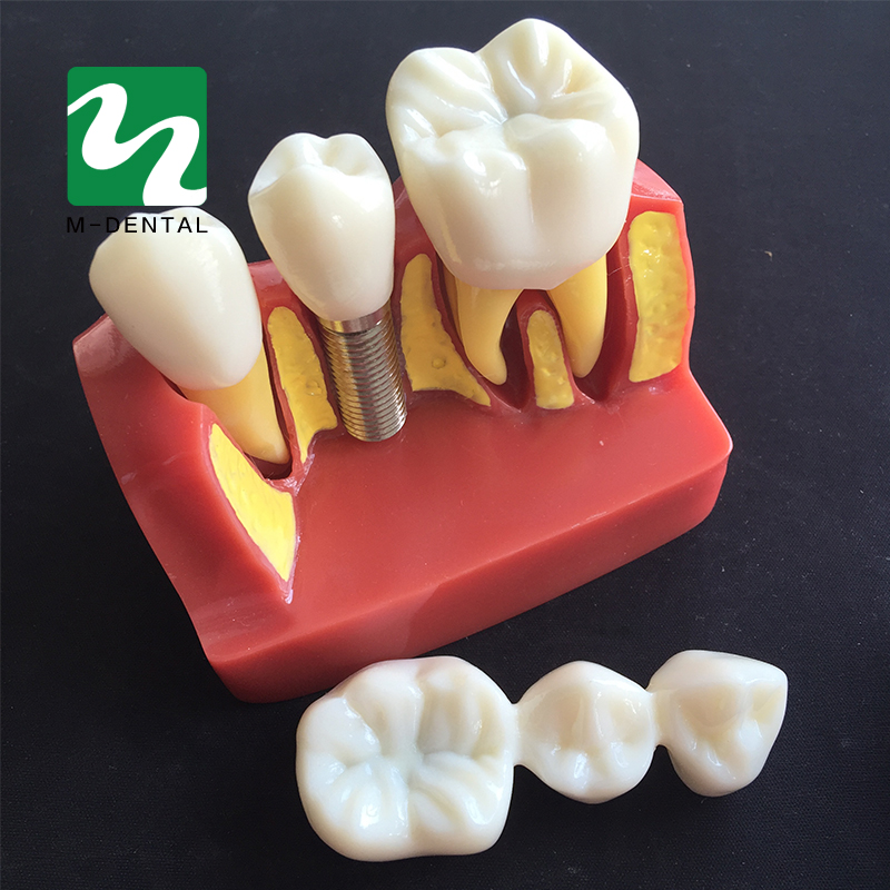 1 PC 4-times Planting Teeth Model Oral Teaching Model Dental Pathology Model For Dentistry Lab ultrasonography in dentistry