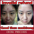 Nuevo potente 2014 cicatriz hermosa y poderosa Natural crema de eliminación de cicatriz del acné reparación espíritu quemadura pigmento impresión quirúrgica