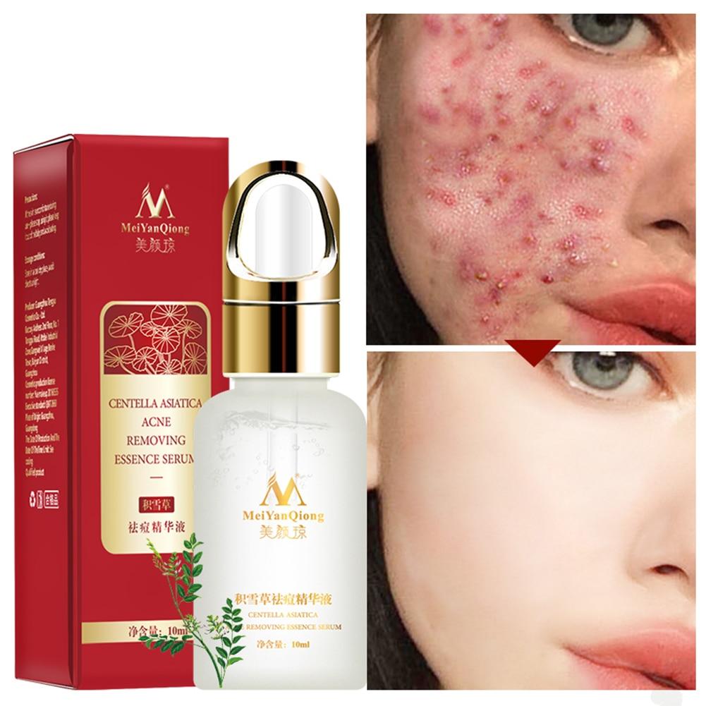 10ml Anti-wrinkles Face Care Skin Repair Scar Removal Acne Essence Moisturizing Universal Brightening Shrink Pores Serum