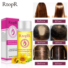 Herbal Hair Growth Essential Oil Health Care Beauty Essence Anti Hair Loss Liqui