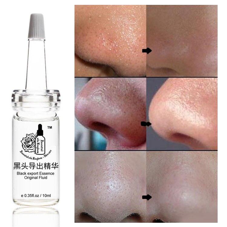 10ml * 2db arcfeketei exportálnak folyadékot oldódnak feketefejek akne hidratáló gyár közvetlen értékesítés fekete export lényege
