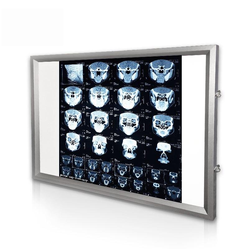 Lampe de visualisation de rayons X d'hôpital appareil dentaire orthopédique télécommande Film radiographique illuminateur boîte à lumière visionneuse de rayons X Y