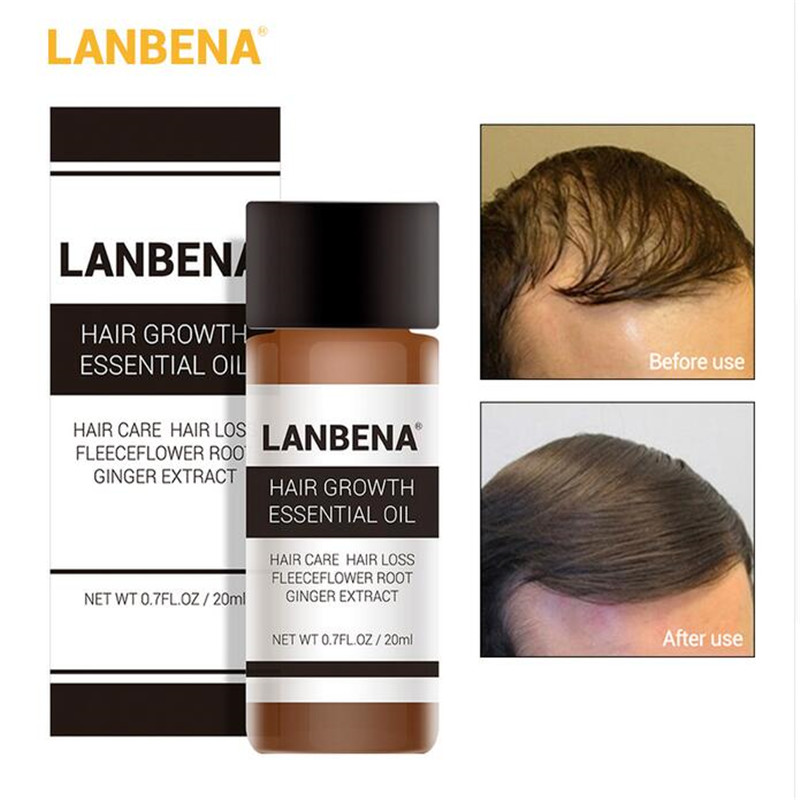 LANBENA 20ml Fast Powerful Hair Growth Essence Products Essential Oil Ginger Oil Liquid Treatment Preventing Hair Loss Hair Care Lahore