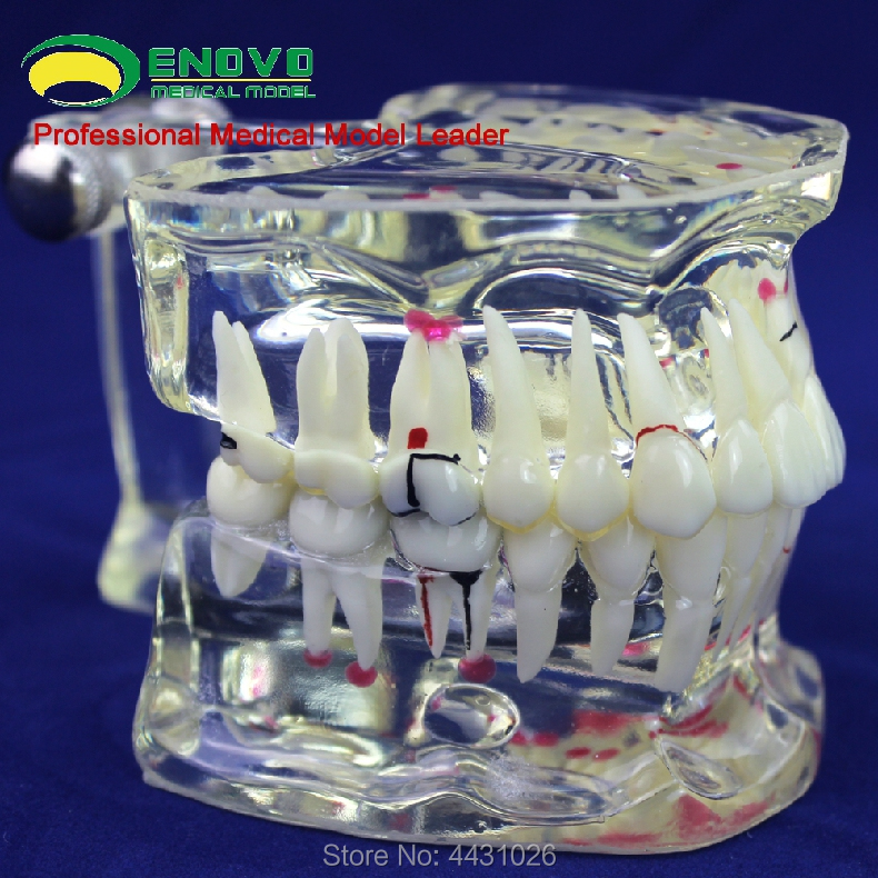 ENOVO Oral and adult dental model cavity department communication enovo medical qualification examination tooth extraction model oral cavity dental model oral cavity division tooth extraction