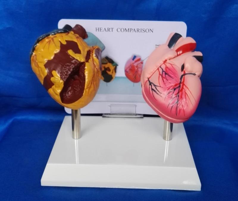 Medizinische Wissenschaft Rauchen herz und normalen herz vergleich ...