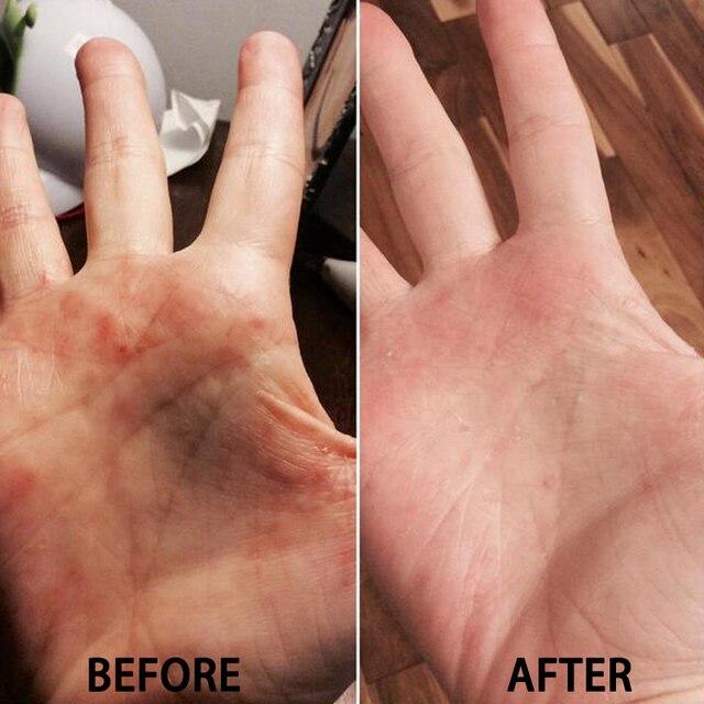 100% oryginalny zudaifu skóra łuszczyca krem zapalenie skóry Eczematoid egzema maść leczenie łuszczyca krem krem do pielęgnacji skóry