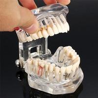 Disease Denture Teeth Implanting Model Dental Laboratory Equipment Oral Hygiene Dental Tools Dentist Dental Material Supply
