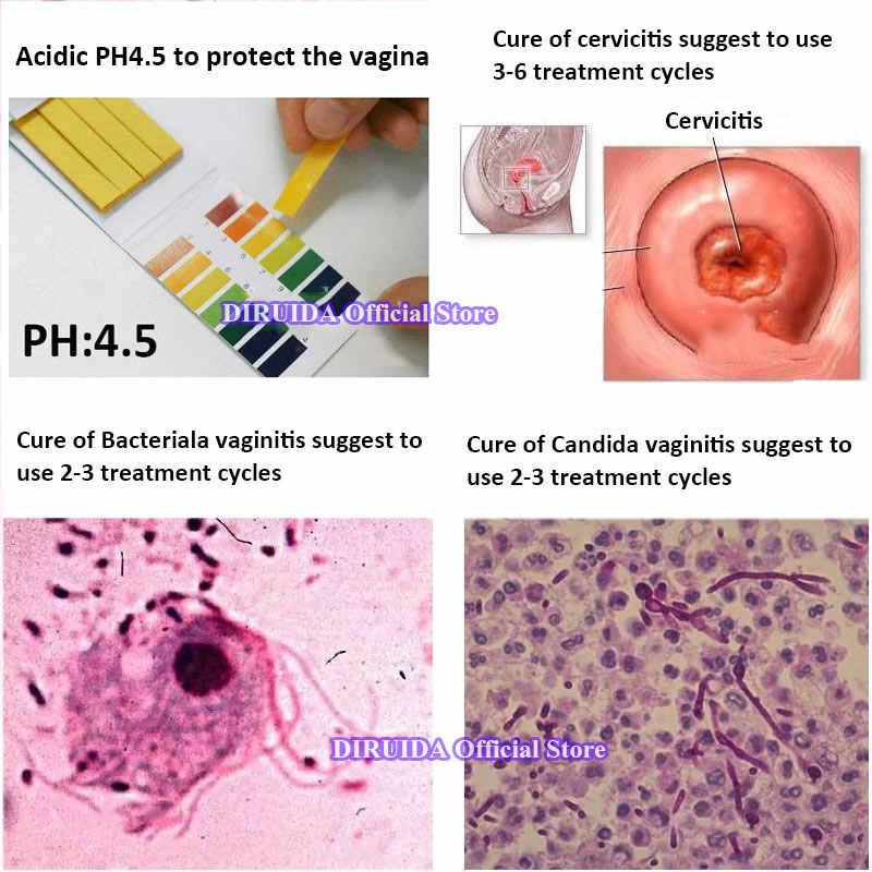 1 unidad de hierbas antiinflamatorias para mujer, ajuste Vaginal, higiene femenina, Gel ginecológico, cuidado Vaginal femenino, limpiador, desintoxicación, lubricante