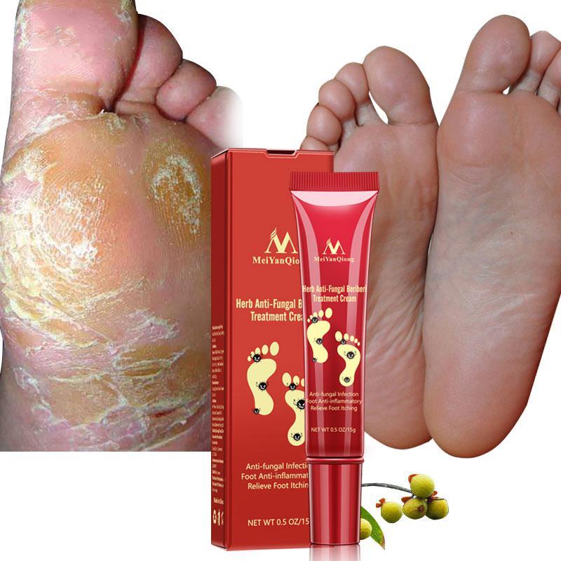 Herb Nail Fungus Treatment Cream Onychomycosis Paronychia Anti Fungal Nail Infection Anti Itch Sweat Odor Anti-fungi