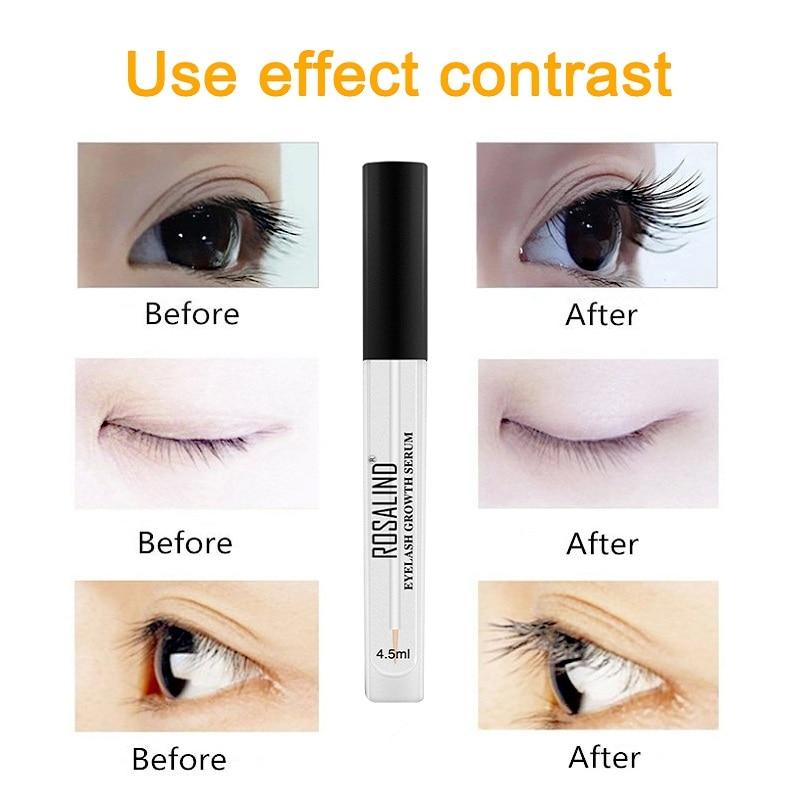 c2f708165aa ROSALIND Eyelash Growth Treatments Natural Eye Makeup Longer Thicker Eyelash  Serum Eyelash Enhancer for Eyelash Lash Lifting-in Eyelash Growth  Treatments ...