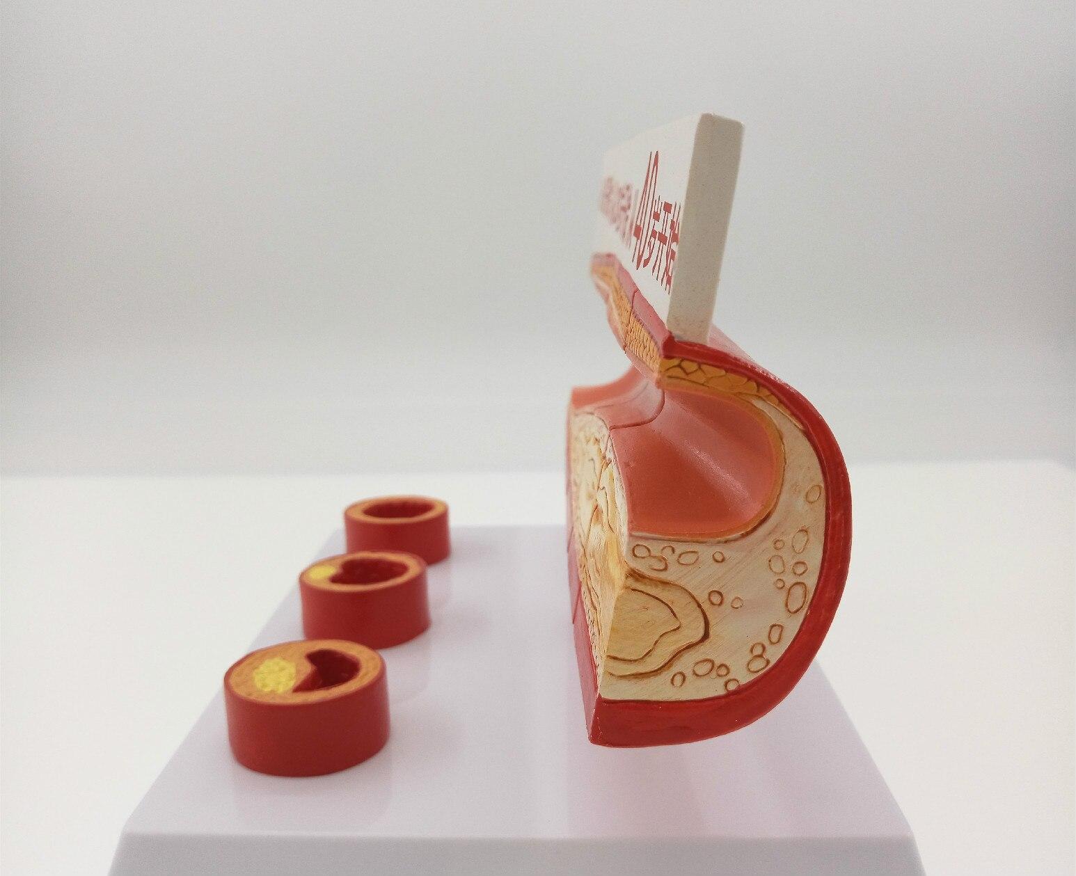 Verschillende Leeftijd Bloedvat Anatomisch Model Vasculaire ...