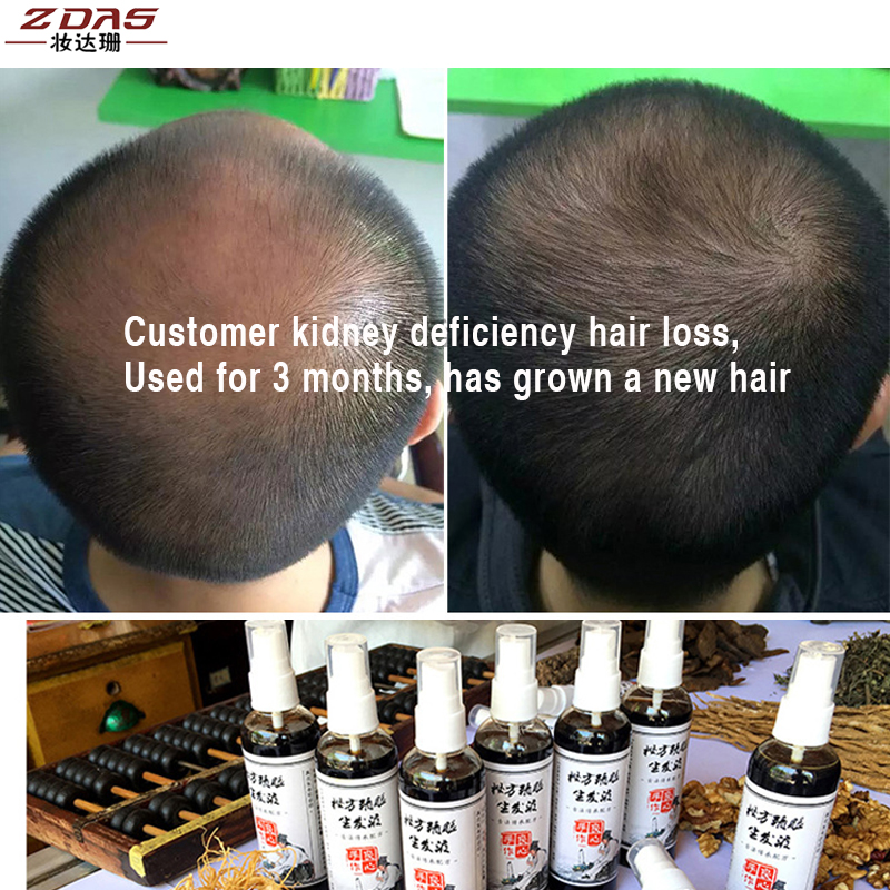 US $17 99 10% OFF|Hair Loss Products Pure Chinese medicine production  growth liquid Raw tincture Essential oil Scalp Treatments Conditioners  2pcs-in