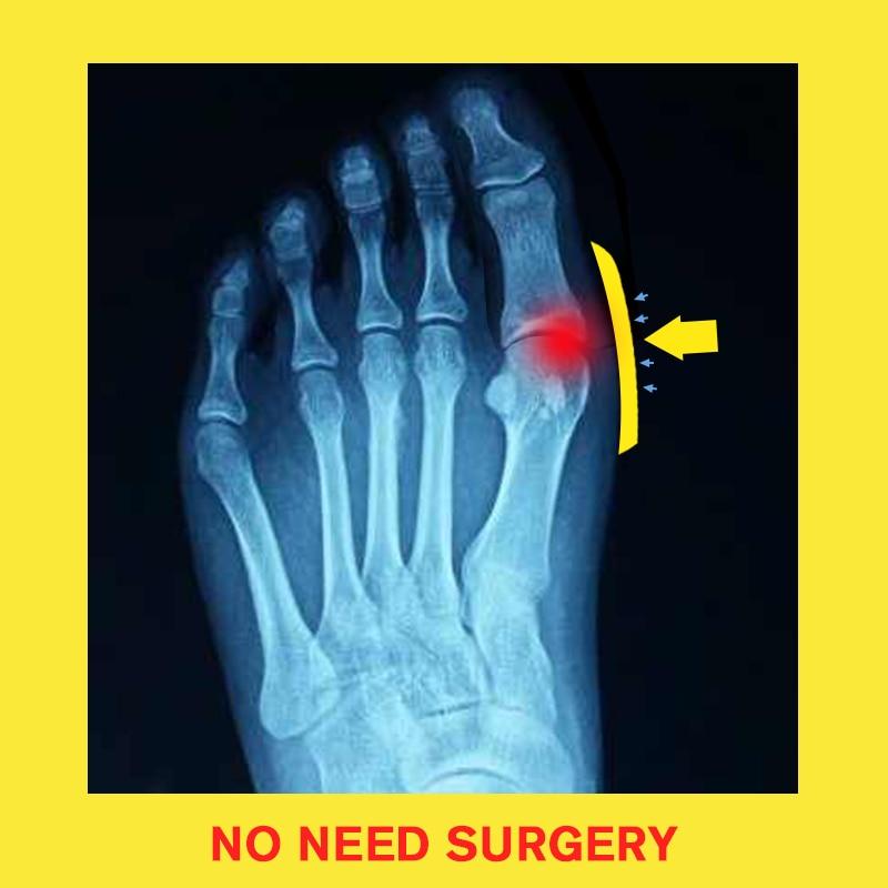 MCCKLE Women Comfy Plain Shoes Flat Platform Ladies Casual Big Toe Foot Correction Sandals Orthopedic Bunion Corrector Flip Flop