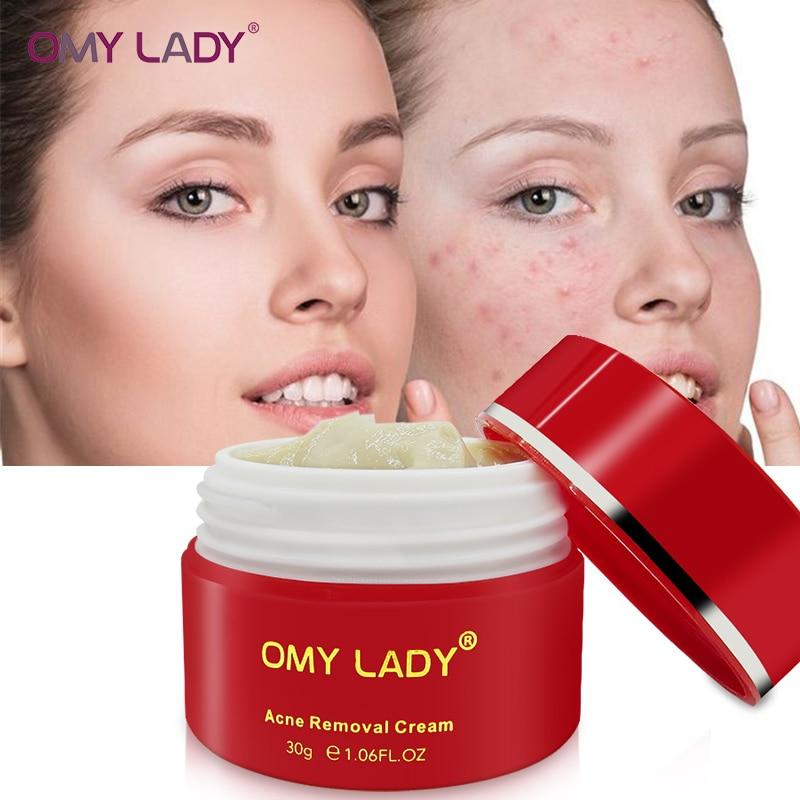 OMY DAME Leistungsstarke Multi Wirkung extrakt Creme Beseitigt falten Entfernen Akne Narbe behandlung akne Anti aging Gesicht Pflege gel