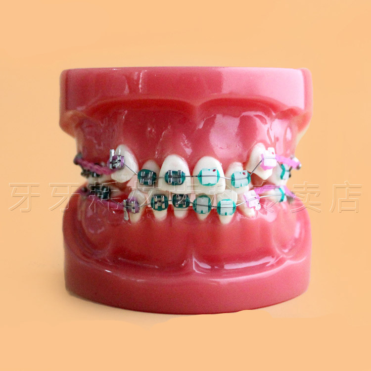 2016 New Arrival New Orthodontic Model Teeth With Half Metal Bracket and Half Ceramic for School Training Toiletry Kits 2016 new arrival dental orthodontics typodont teeth model metal brace bracket typodont with arch wire toiletry kits