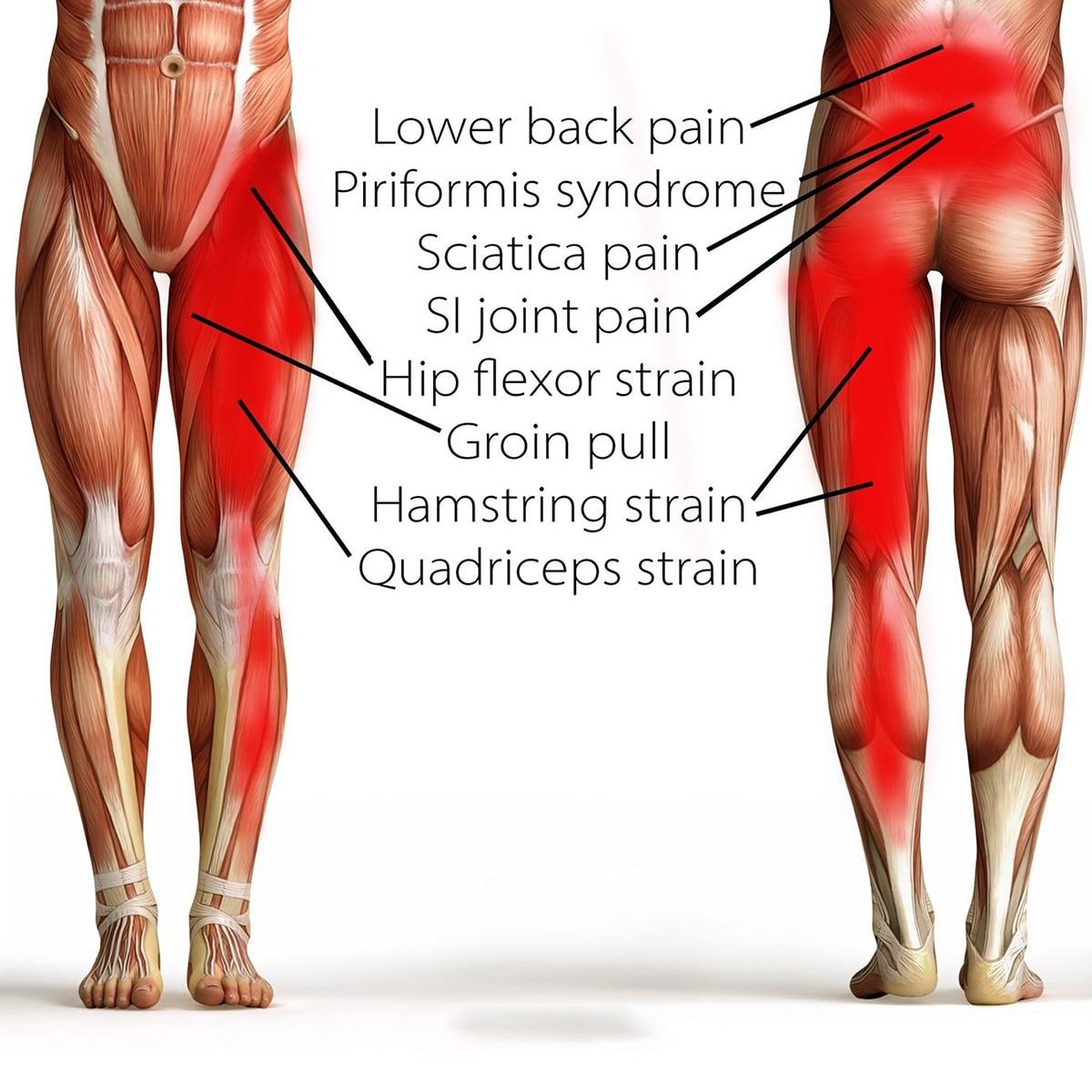 € 6.75 33% de réduction|Enveloppement de Compression Bodymate pour l'aine  hanche cuisse Quad ischio jambiers articulations sangle de soulagement de  la ...