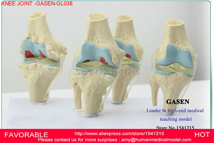 KNEE JOINT MODEL,THE HUMAN SKELETON MODEL,ARTHROPATHY OF THE KNEE JOINT MODEL,HUMAN PATHOLOGY KNEE JOINT MODEL-GASEN-GL038 il volo warsaw