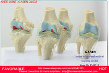 KNEE JOINT MODEL,THE HUMAN SKELETON MODEL,ARTHROPATHY OF THE KNEE JOINT MODEL,HUMAN PATHOLOGY KNEE JOINT MODEL-GASEN-GL038
