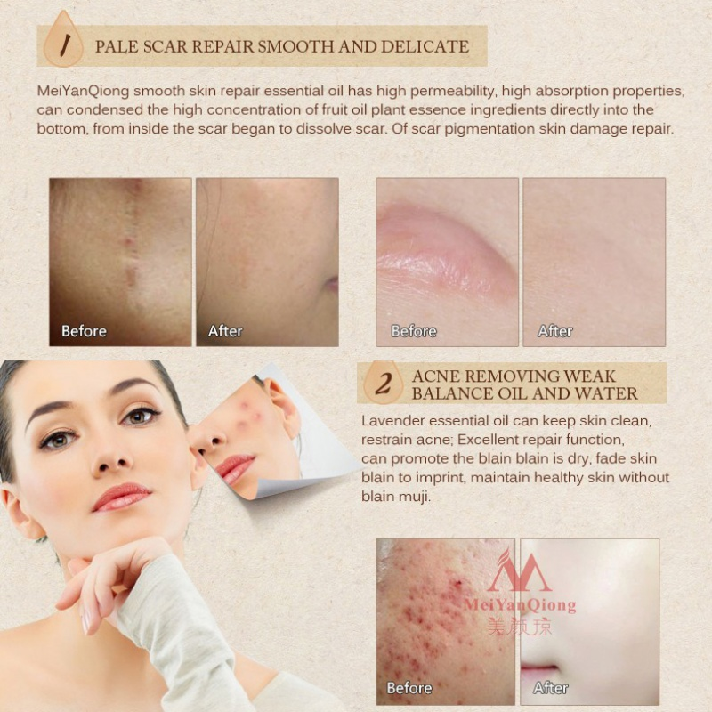 US $2 35 20% OFF|Remove Burn Marks Scar Essential Oil 10ML Women Skin Care  Natural Repair Skin Lavender Essence Pure-in Serum from Beauty & Health on