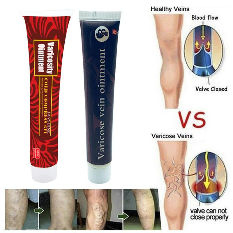 Veins Treatment Cream Effective Cure Vasculitis Phlebitis Spider Veins Pain Varicosity Angiitis Ointment Varicose Vein Ointment