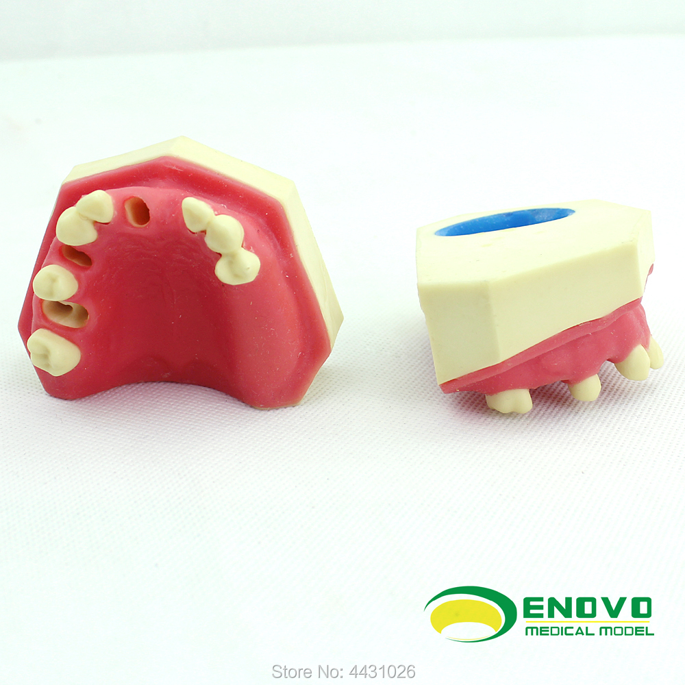 ENOVO The dental implant was sutured in the oral cavity of maxillary sinus dentition