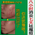 Hot sell Acne cream blain products desalt blain to imprint face cream 30g & Send a pc nasal membrane free shipping