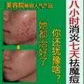 Hot vender Acne produtos creme blain desalt blain para imprimir creme para o rosto 30g & Enviar um pc membrana nasal livre grátis