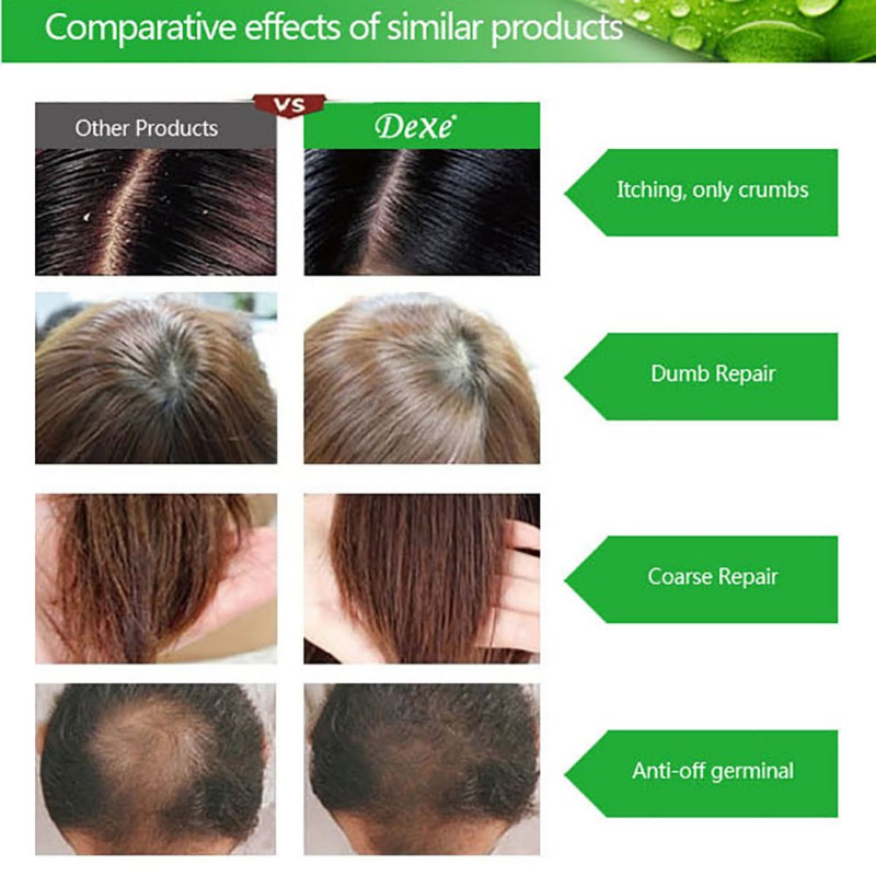 200ml Herbal Hair Growth Products Hair Loss Shampoo Improve Hair Quality Natural Extract Shampoo Hair Care 7