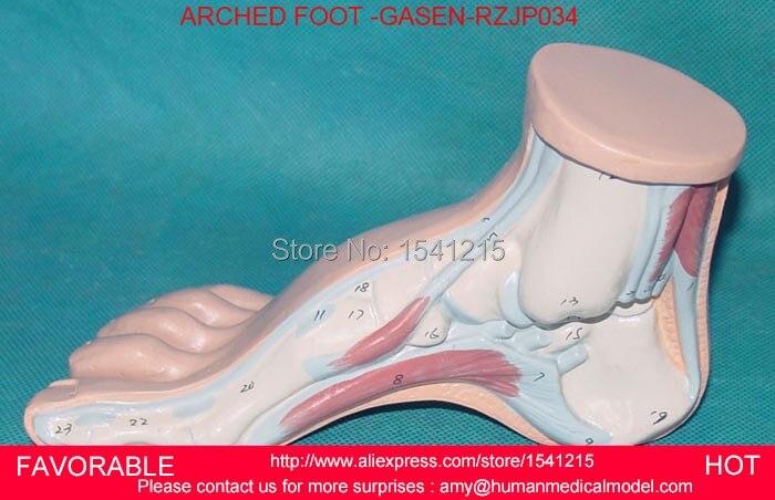 арочный свод стопы - FOOT MEDICAL ,ANATOMICAL ,HIGH ARCH FOOT , CLAW FOOT, FOOT ANATOMY, MEDICAL,ANATOMY ARCHED FOOT -GASEN-RZJP034