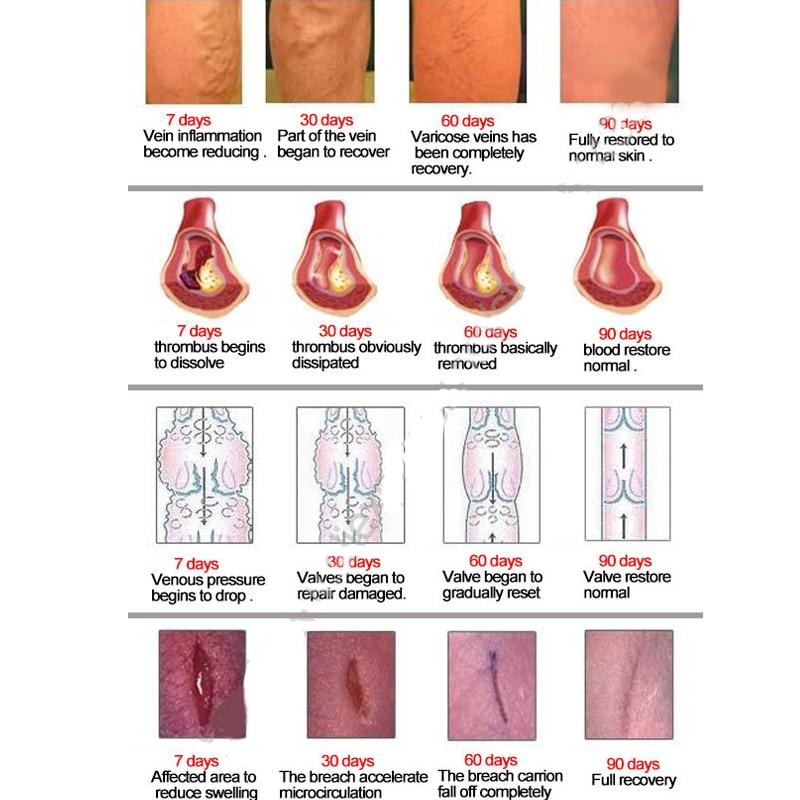 tratament cu duș varicoz