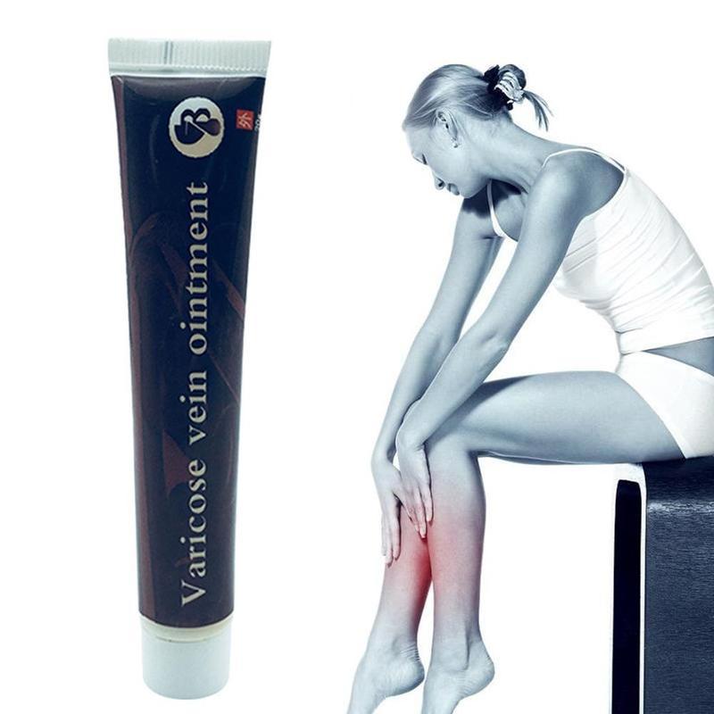 Varicose Veins Treatment Ointment Cream Effective Cure Vasculitis Phlebitis Spider Veins Pain Varicosity Angiitis Health Care