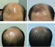 Alopecia Herbal Hair Growth Grow Restoration Pilatory Stop Hair Loss Product Liquid 30ml Sunburst Hair Regrowth Treatment Origin