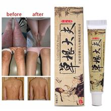 Chinese Medicinal Ointment Body Psoriasis Cream